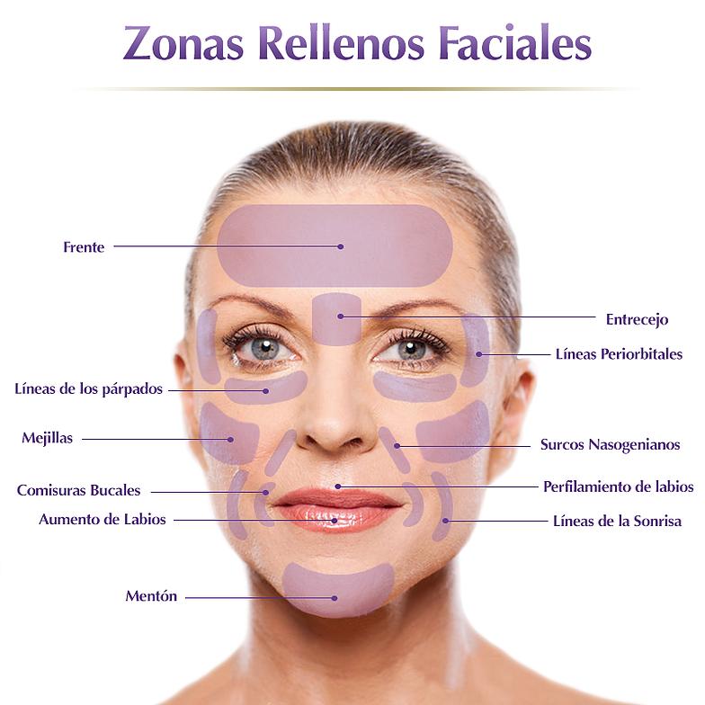 Voluminzación Facial